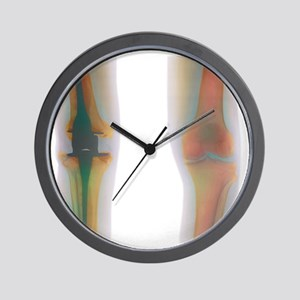 Knee replacement, X-ray Wall Clock