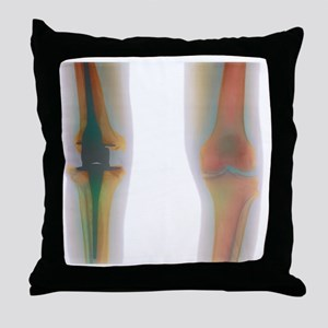 Knee replacement, X-ray Throw Pillow