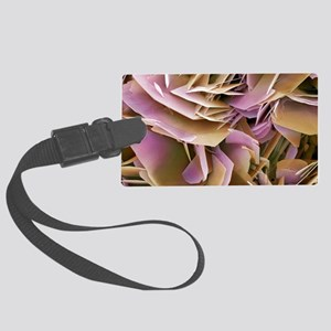 Kidney stone crystals, SEM Large Luggage Tag