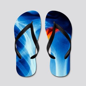 Joint disease, CT scan Flip Flops