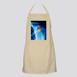 Joint disease, CT scan Apron