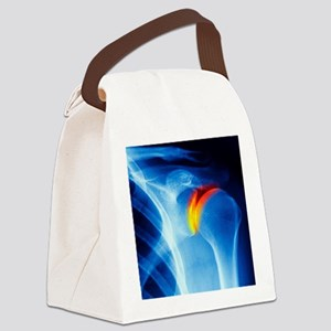 Joint disease, CT scan Canvas Lunch Bag