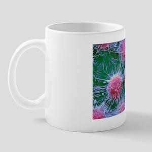 Kidney cancer cells, SEM Mug