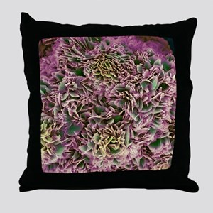 Kidney stone crystals, SEM Throw Pillow