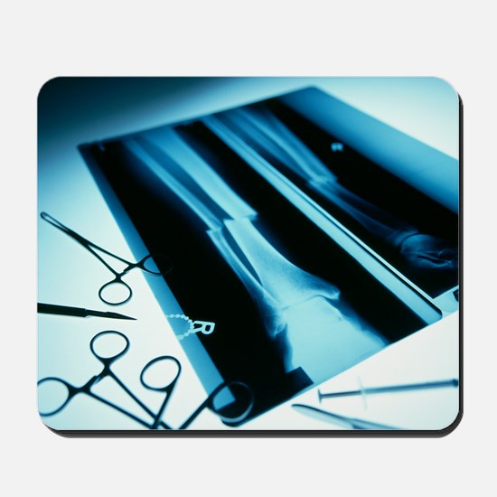Leg fracture, X-ray Mousepad