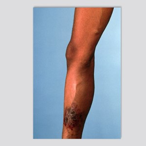 Leg suffering from chroni Postcards (Package of 8)