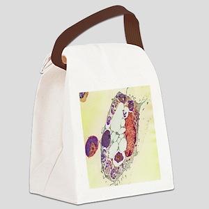 Leishmania protozoa, TEM Canvas Lunch Bag