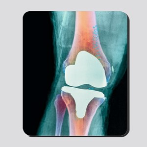 Knee joint prosthesis, X-ray Mousepad