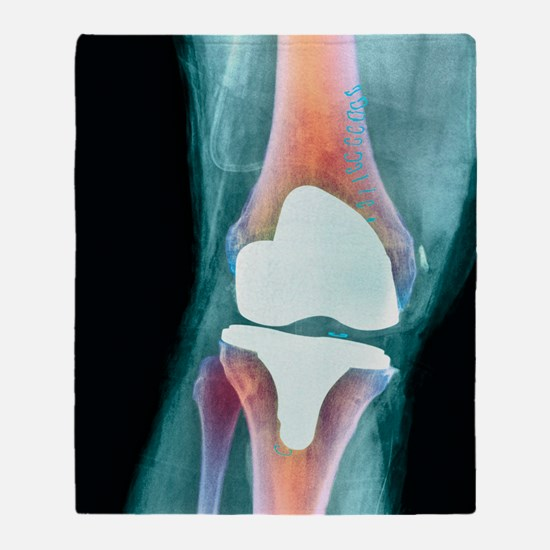 Knee joint prosthesis, X-ray Throw Blanket