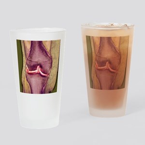 Knee meniscus tear Drinking Glass