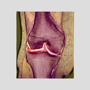 Knee meniscus tear Throw Blanket