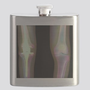 Knee replacement, X-ray Flask