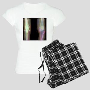 Knee replacement, X-ray Women's Light Pajamas