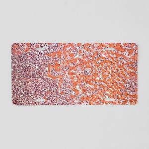 Leukaemia blood cells, ligh Aluminum License Plate