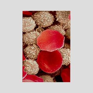 Leukaemia blood cells, SEM Rectangle Magnet