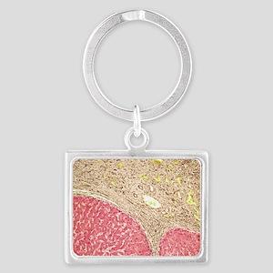 Liver tissue cirrhosis, light m Landscape Keychain