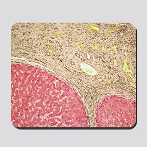 Liver tissue cirrhosis, light micrograph Mousepad