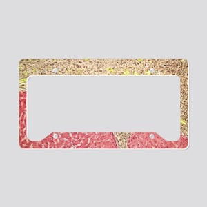 Liver tissue cirrhosis, light License Plate Holder