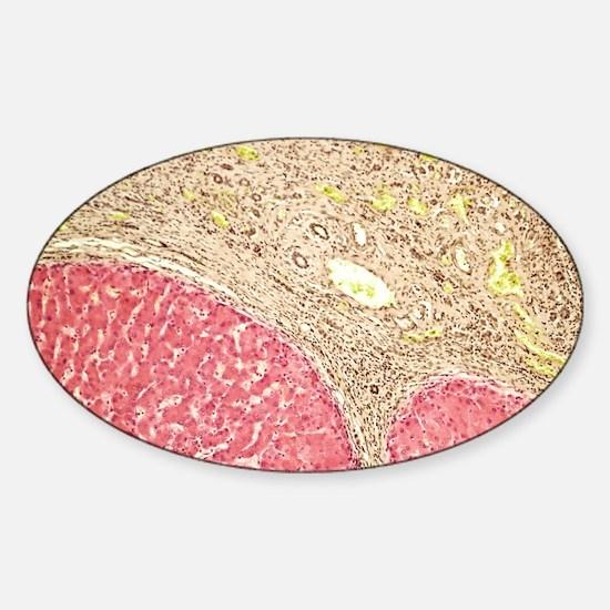 Liver tissue cirrhosis, light micro Sticker (Oval)