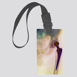 Loosened hip replacement, X-ray Large Luggage Tag