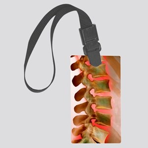 Lower back pain, X-ray Large Luggage Tag