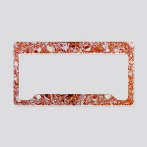 LM of brain tissue affected b License Plate Holder