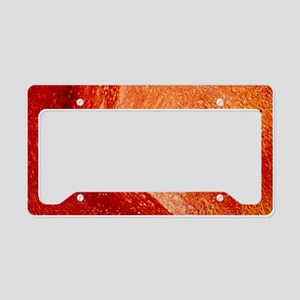 LM of cross-section of artery License Plate Holder