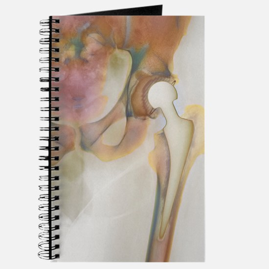 Loosened hip replacement, X-ray Journal