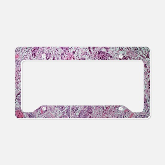 Light micrograph of lung canc License Plate Holder