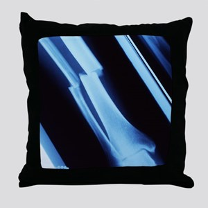 Lower leg fracture, X-ray Throw Pillow