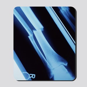Lower leg fracture, X-ray Mousepad