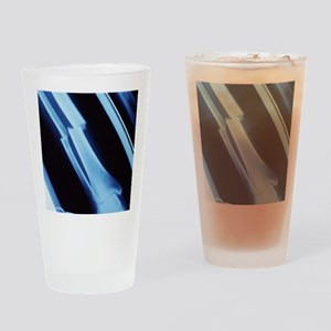 Lower leg fracture, X-ray Drinking Glass