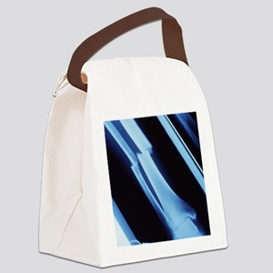 Lower leg fracture, X-ray Canvas Lunch Bag