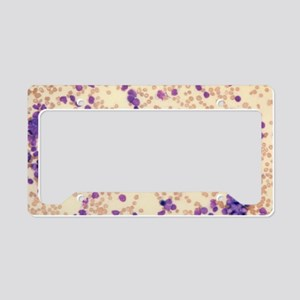 LM of acute lymphocytic leuka License Plate Holder