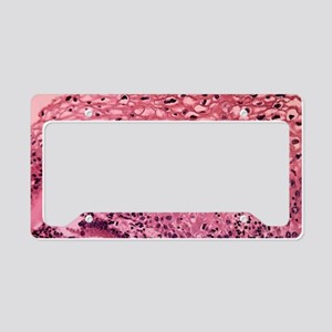 LM of cervix with human papil License Plate Holder