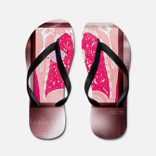 Lung cancer, CT scan Flip Flops