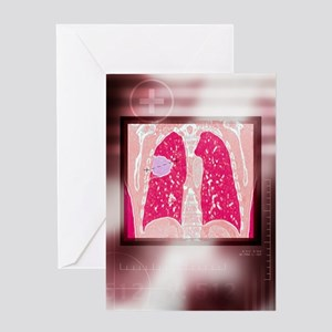 Lung cancer, CT scan Greeting Card