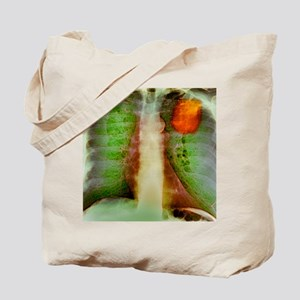 Lung cancer, X-ray Tote Bag