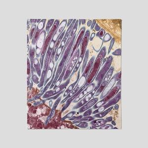 Malaria parasites, TEM Throw Blanket