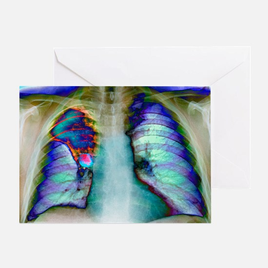 Lung cancer, X-ray Greeting Card