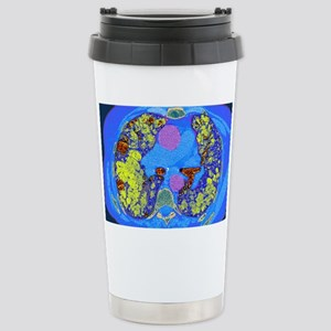 Lung fibrosis, CT scan Stainless Steel Travel Mug