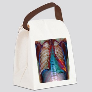 Lung infection Canvas Lunch Bag