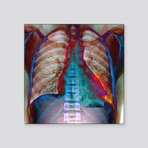 "Lung infection Square Sticker 3"" x 3"""