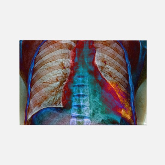 Lung infection Rectangle Magnet