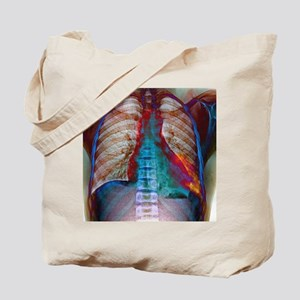 Lung infection Tote Bag