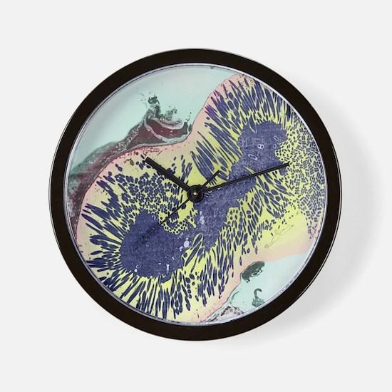 Malaria parasites, TEM Wall Clock