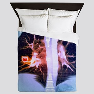 Lung lesions, CT scan Queen Duvet