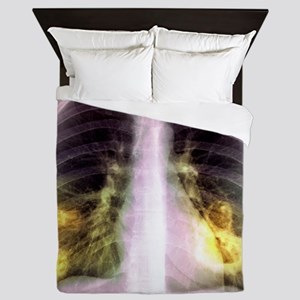 Lung lesions, X-ray Queen Duvet
