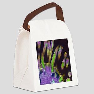 Malaria parasites, TEM Canvas Lunch Bag