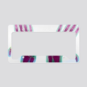 Marfan's syndrome License Plate Holder